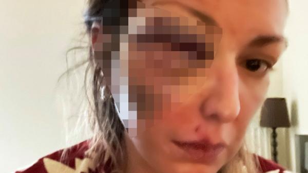 Κύμα συμπαράστασης στο Twitter για τη blogger που ξυλοκοπήθηκε βάναυσα από τον σύντροφό της (Pic)